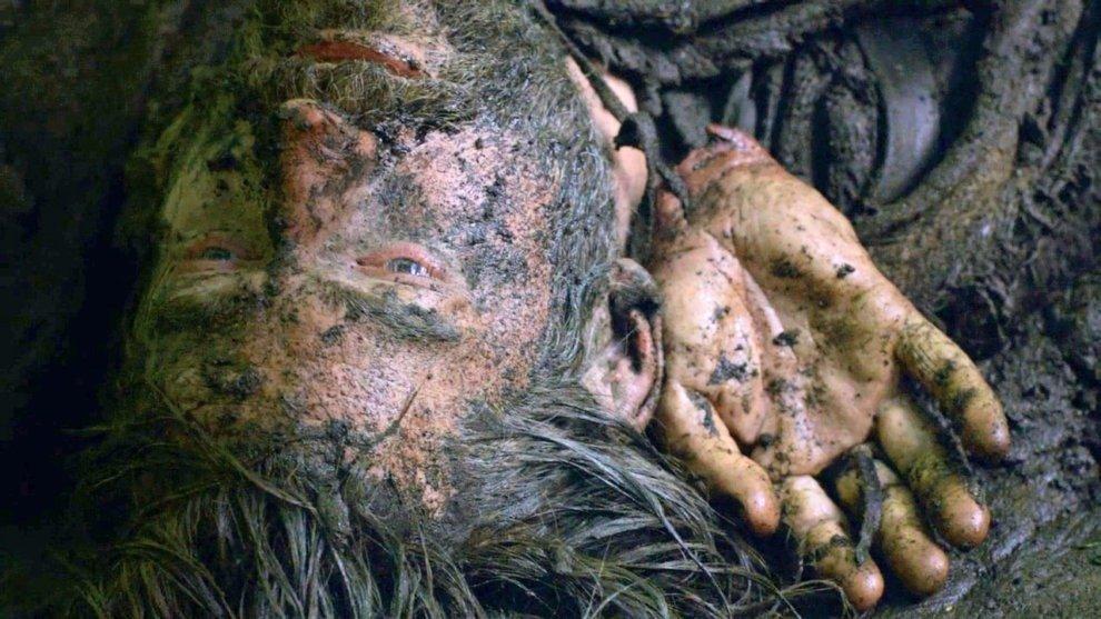 Джейме Ланнистер с отрубленной рукой